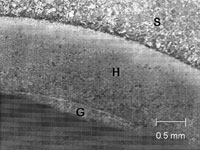 Micrograph of laser-glazed 1080 steel